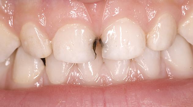 Серебрение кариеса молочных зубов