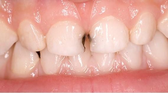 лучшие можно ли очистить зубы после серебрения рейс проходит сайте